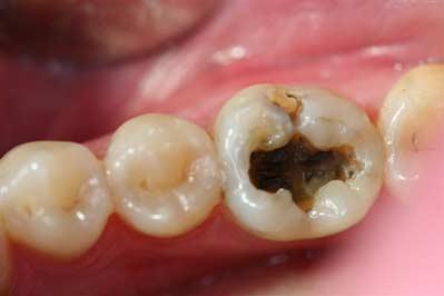 decay under amalgam 2 after