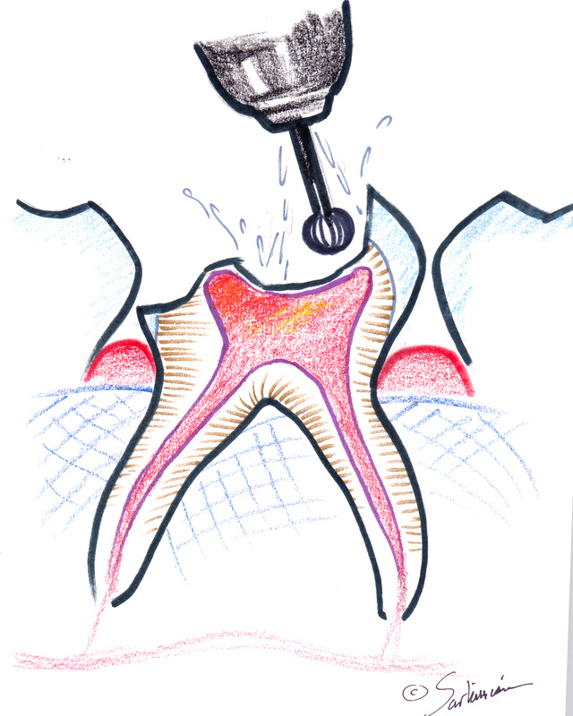 Laser Pulpotomy Illustrations Of A Baby Root Canal
