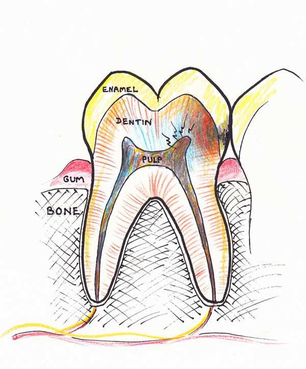 Treating a root canal infection - stage 1