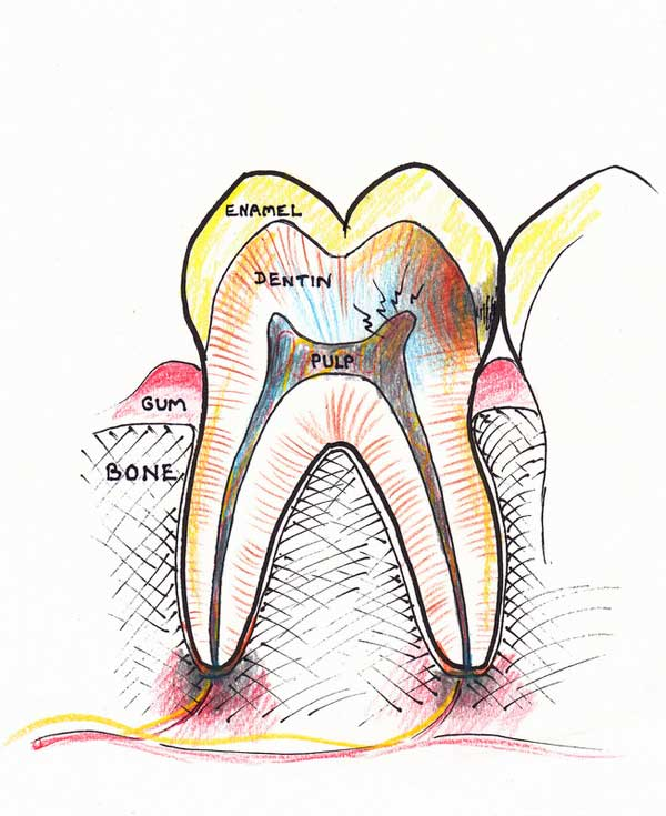 Treating a root canal infection - stage 2