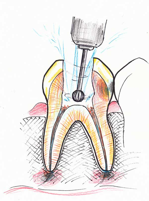 Treating a root canal infection - stage 3