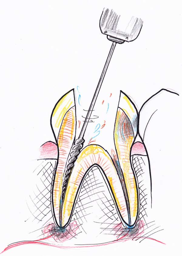Treating a root canal infection - stage 4