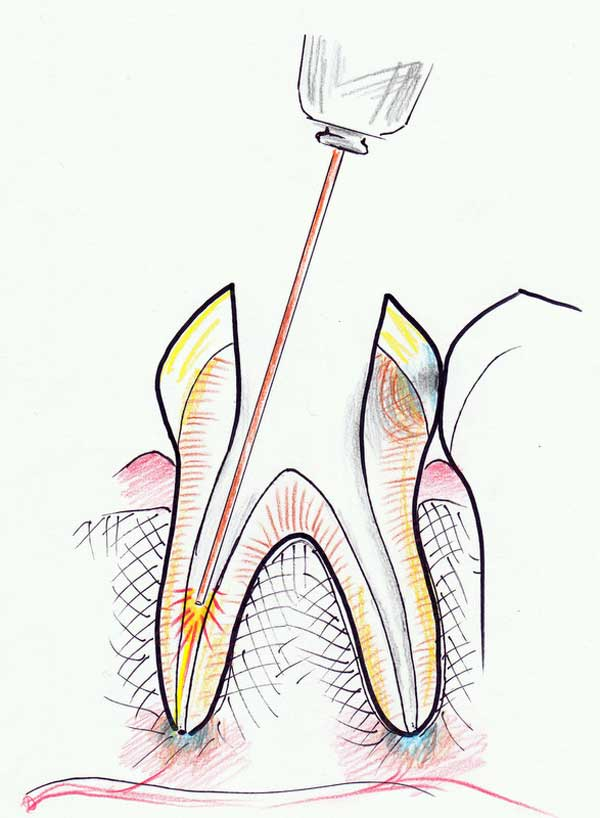 Treating a root canal infection - stage 5