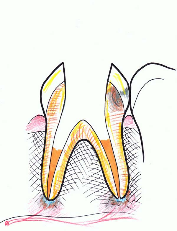 Treating a root canal infection - stage 6