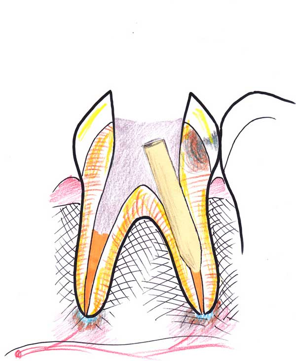 Treating a root canal infection - stage 7