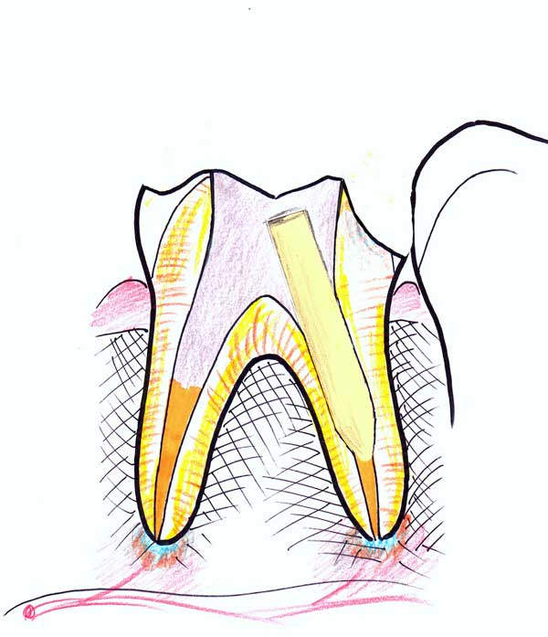Treating a root canal infection - stage 8