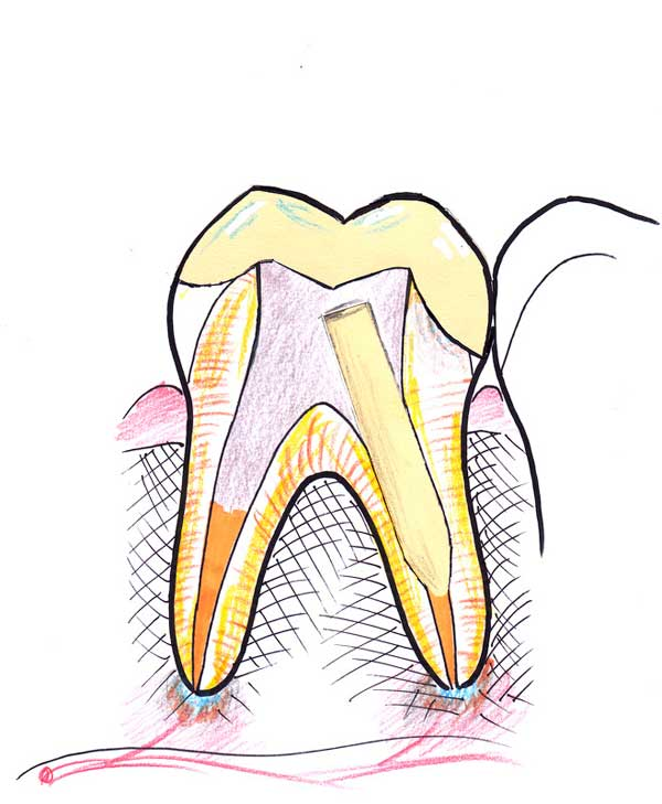 Treating a root canal infection - stage 9