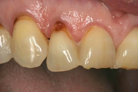 Abfraction Lesion With Heavy Tooth Wear And Enamel Cracks