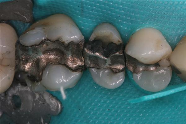 two teeth with amalgam damage
