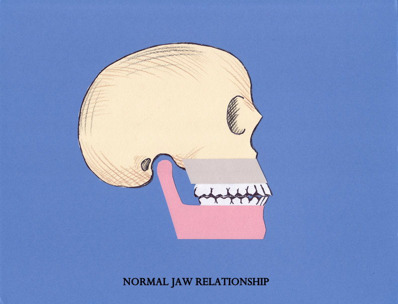 Normal jaw relationship