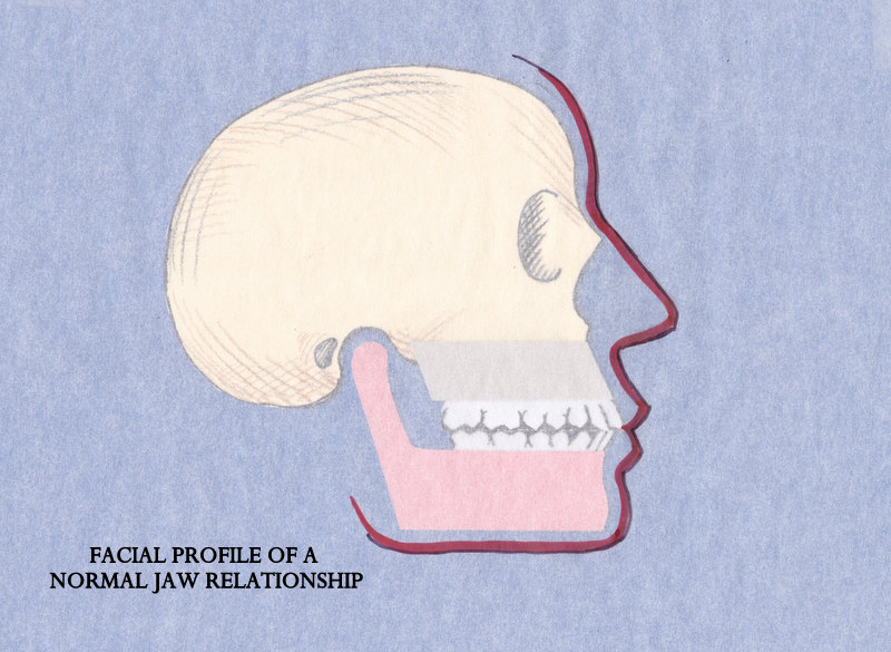 Bite and Normal jaw (2)