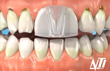 The NTI is much smaller, and where indicated, works great for bruxism when associated with headaches.