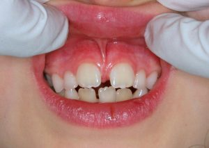 A moderate labial frenum attaching to the papilla and causing a diastema (space between teeth)