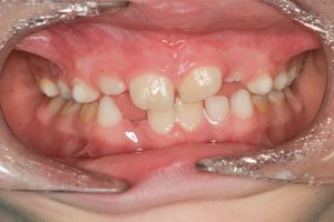 The frenum after laser frenectomy