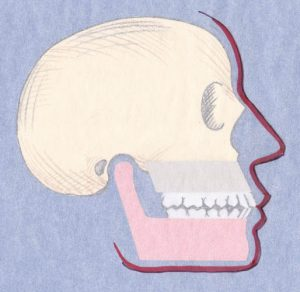 This illustration demonstrates in an adult, the difference between a normal jaw relationship...