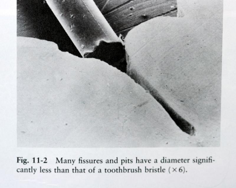 Fissure vs bristle
