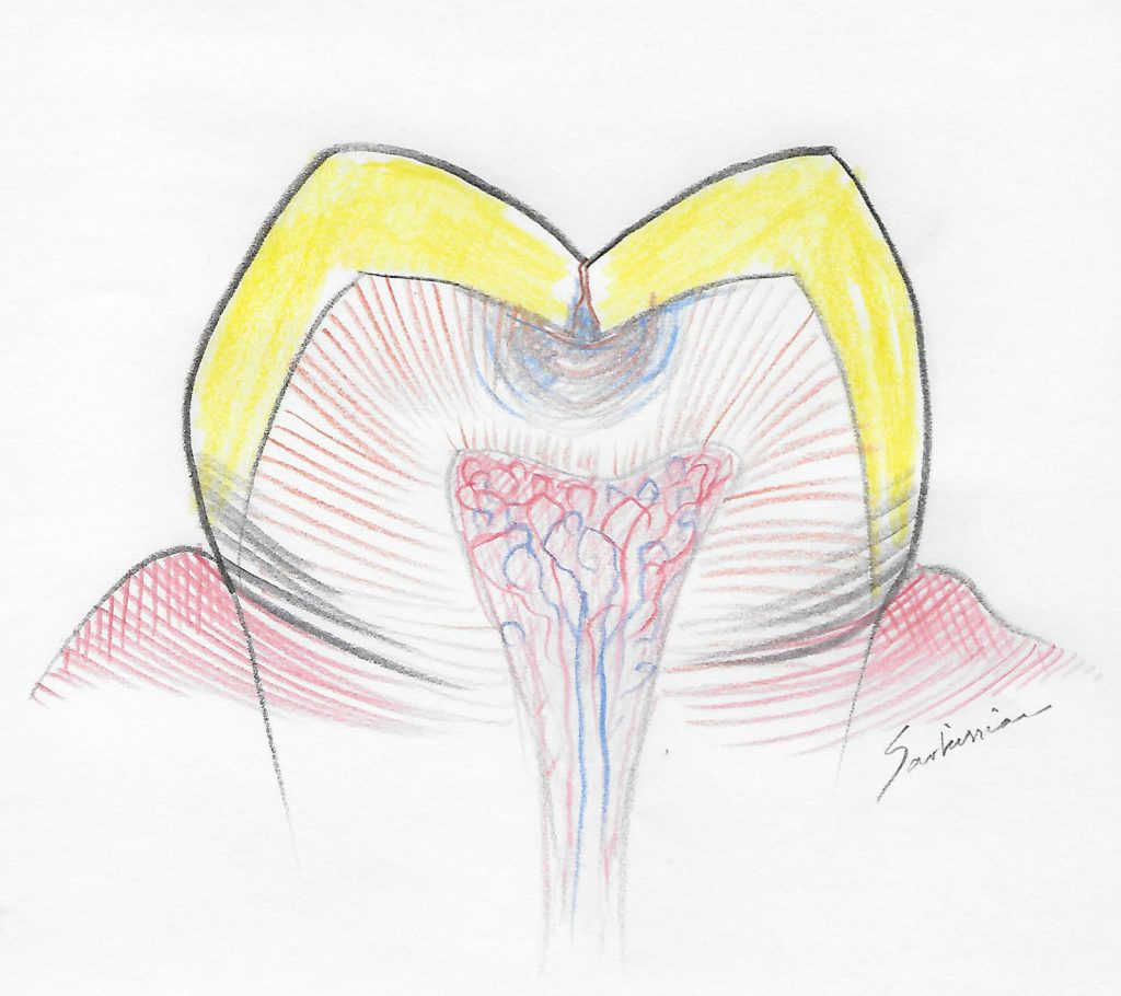 illustration of a tooth with decay