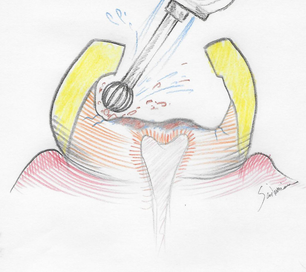 illustration of tooth decay removal