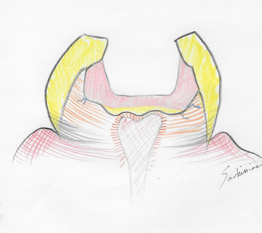 illustration of a tooth core buildup after decay removal