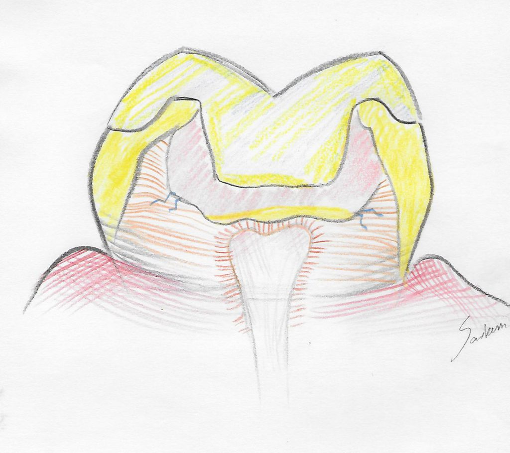 illustration of the onlay placement after removal of tooth decay